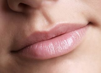 dudak morarması nasıl geçer